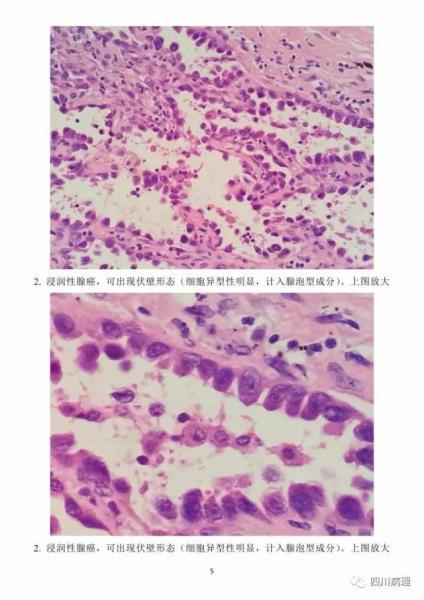 肺浸润性腺癌VS原位腺癌