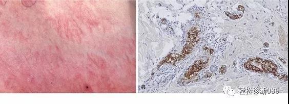 皮肤淋巴瘤(16)——B-NHL(PCLBCL,LT)
