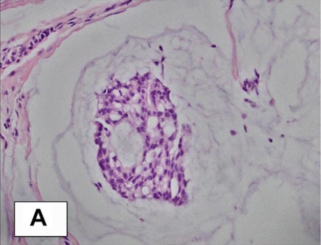 皮肤原发黏液癌一例