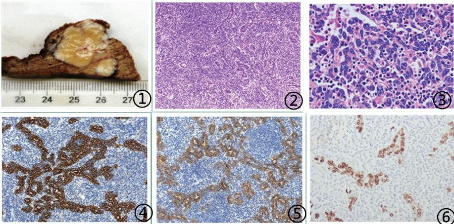 肝脏淋巴上皮瘤样癌临床病理分析