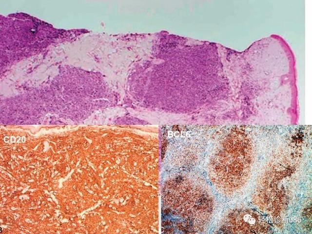 皮肤B细胞淋巴瘤