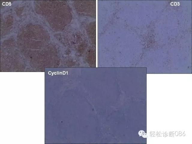 关于套细胞淋巴瘤的总结课件