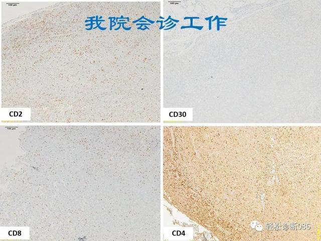 淋巴母细胞淋巴瘤