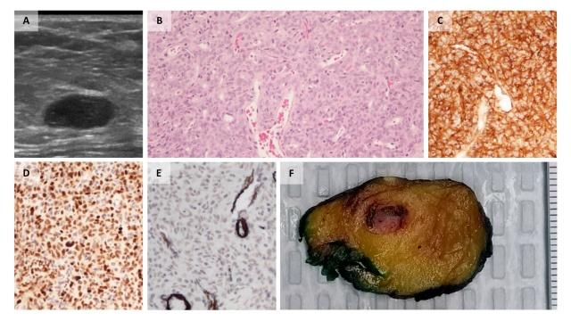 乳腺良性梭形细胞病变实例分析