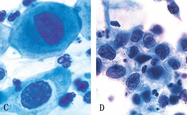 鳞状上皮细胞cin1_鳞状上皮cin1级宫颈鳞状上皮cin高度鳞状cin2