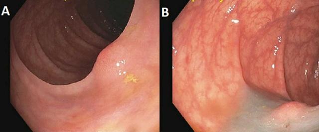 结肠节细胞神经瘤一例
