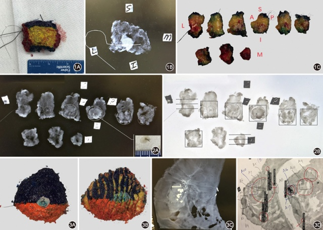乳腺大体标本取材:美国MD安德森癌症中心乳腺癌标本取材介绍