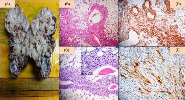 儿童肾血管平滑肌脂肪瘤1例并文献复习