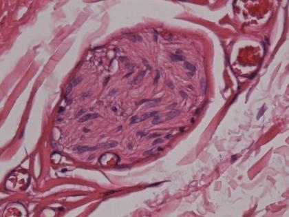 恶性间皮瘤与先天性巨结肠之间的一次辩论赛