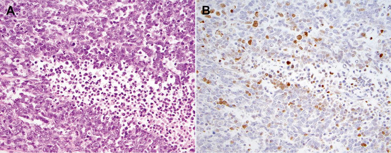 文献速递-DDIT3免疫组化与高级别黏液样脂肪肉瘤