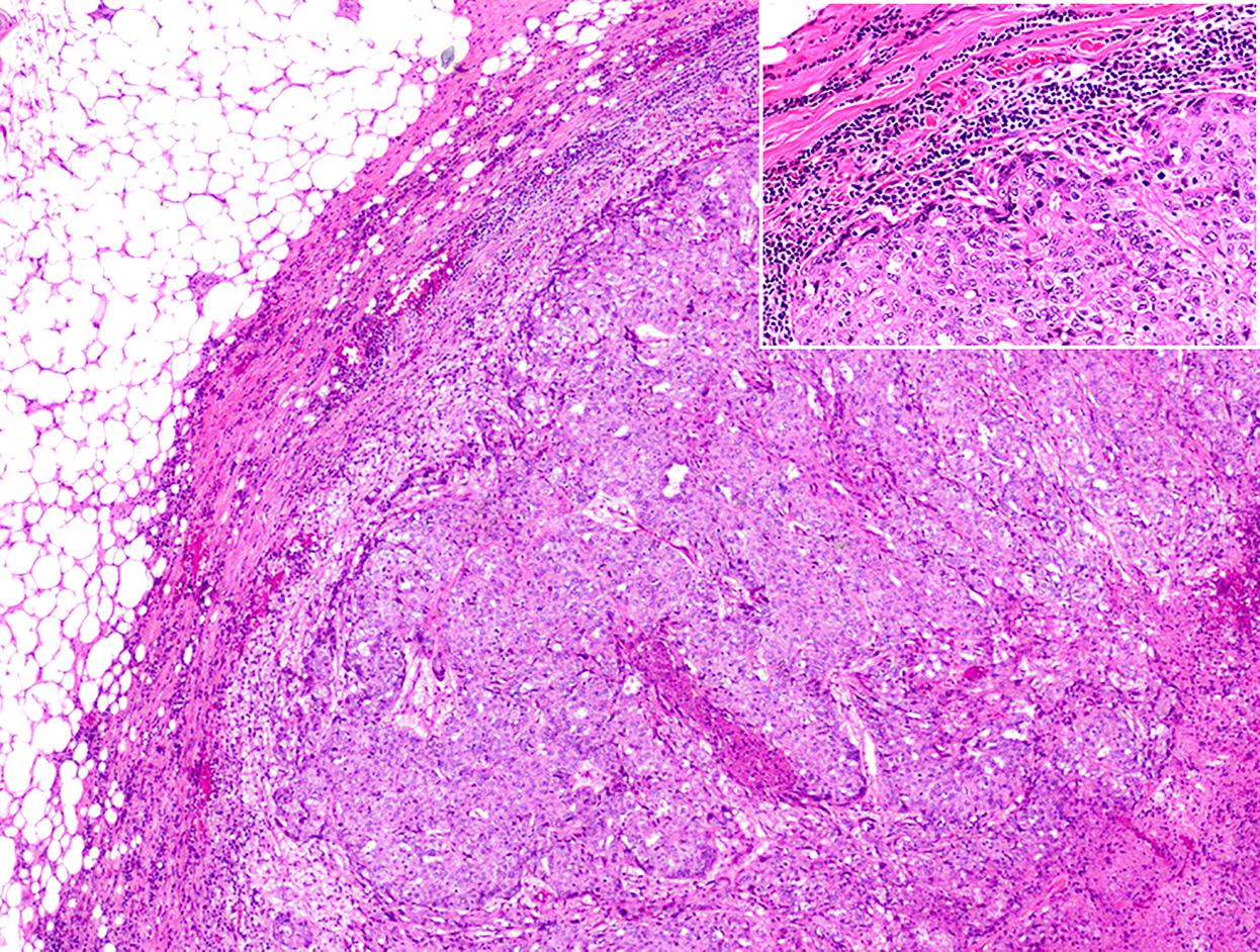 乳腺乳头状肿瘤概览(四)