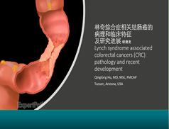 林奇综合征相关结肠癌的病理与研究进展