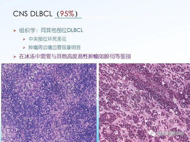 中枢神经系统弥漫大B细胞淋巴瘤