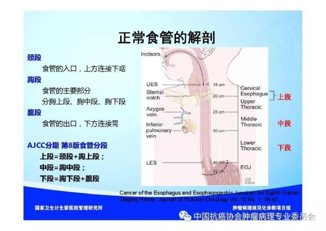 肿瘤病理规范化诊断标准 第7部分:食管癌病理诊断标准