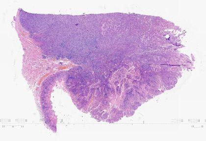 一例伴淋巴样间质的胃癌
