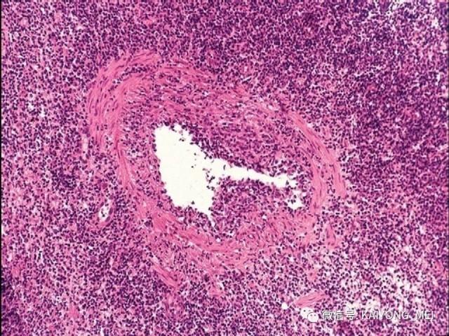 T细胞淋巴瘤病理诊断及进展(三)