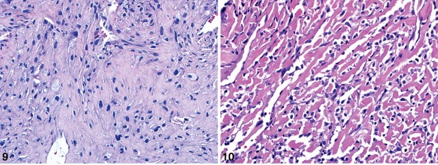 CAP文献学习-骨原发平滑肌肉瘤