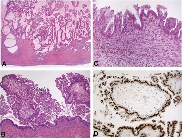 子宫内膜异位相关卵巢肿瘤(五)