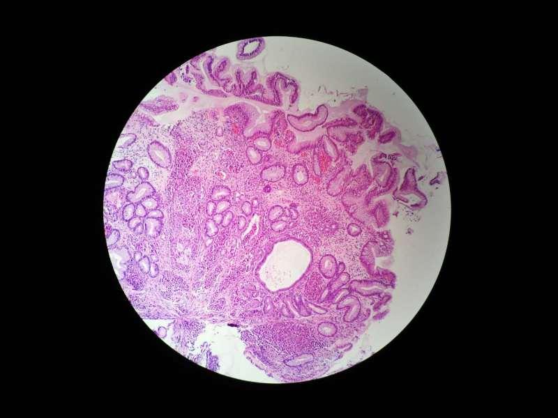 病理科工作札记(四十八)胃间质内细胞团,什么来源?