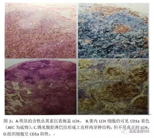 组织细胞起源疾病(4)——肿瘤性病变(LCH)
