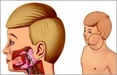 滤泡性淋巴瘤:空心针核活检的诊断特点