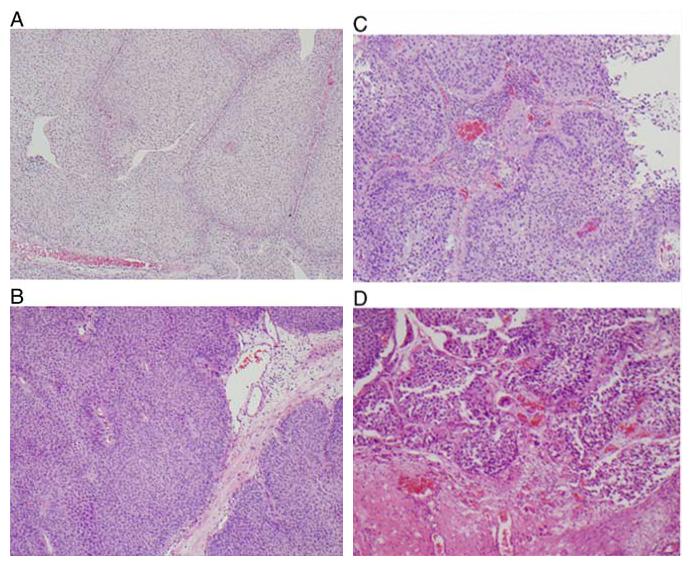 最新文献学习-泌尿生殖病理学会对某些问题的重要更新(九)