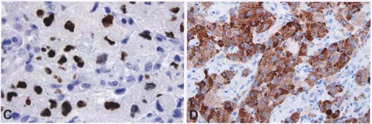 弥漫性星形细胞和少突胶质细胞肿瘤(3)