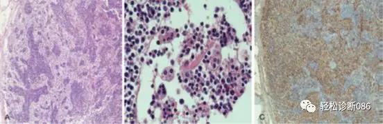 组织细胞起源疾病(22)——增生性病变(RD)