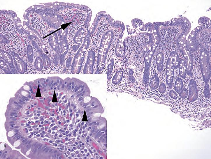 外科病理学实践:诊断过程的初学者指南 | 第7章 胃和十二指肠